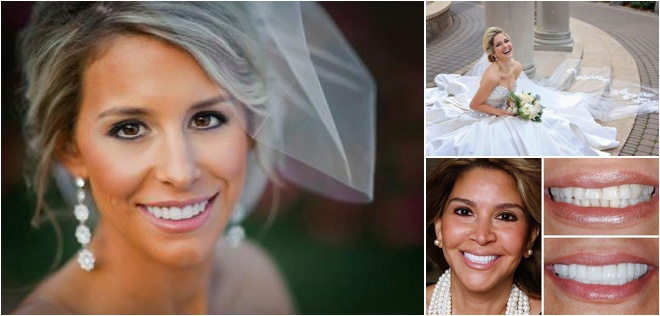 Beautiful Bridal Smile from Texas Center for Cosmetic & Implant Dentistry