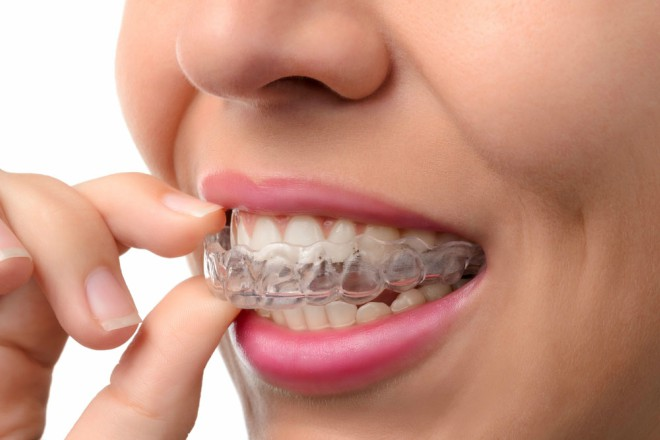Forestwood Dental Houston Texas Invisalign Best Price